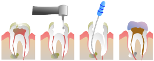 Root-Canal-Steps
