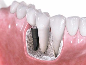 dental-implants-my-scottsdale-dentist2